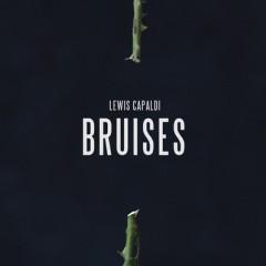 Bruises (Remix) - Lewis Capaldi